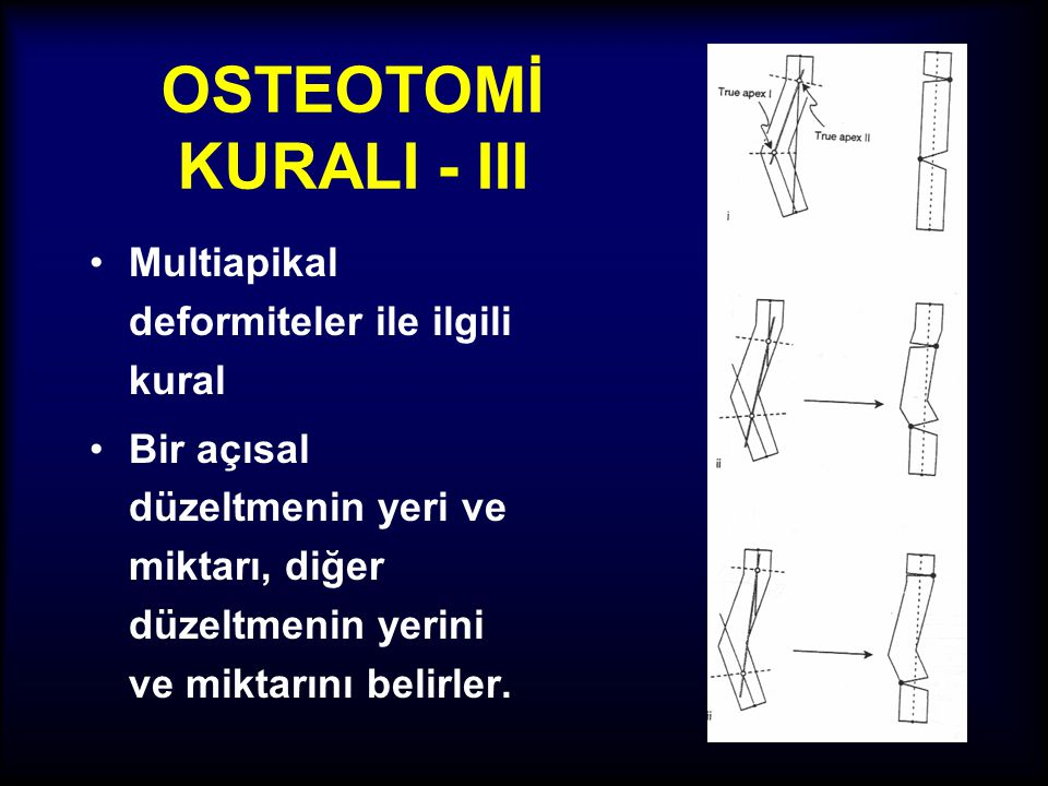 OSTEOTOMİ KURALI - III Multiapikal deformiteler ile ilgili kural