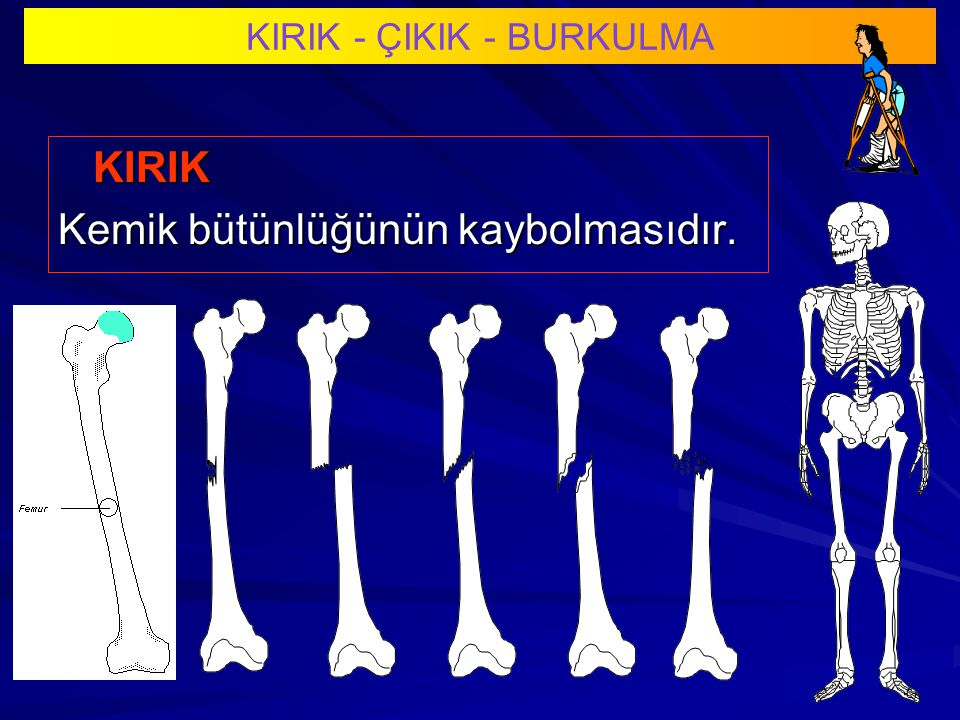 KIRIK - ÇIKIK - BURKULMA