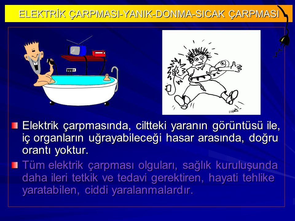 ELEKTRİK ÇARPMASI-YANIK-DONMA-SICAK ÇARPMASI