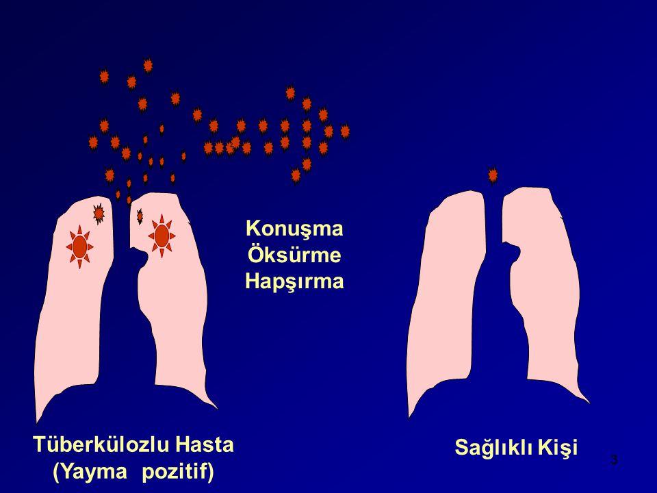 Konuşma Öksürme Hapşırma Tüberkülozlu Hasta (Yayma pozitif)