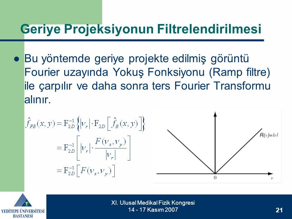 Geriye Projeksiyonun Filtrelendirilmesi