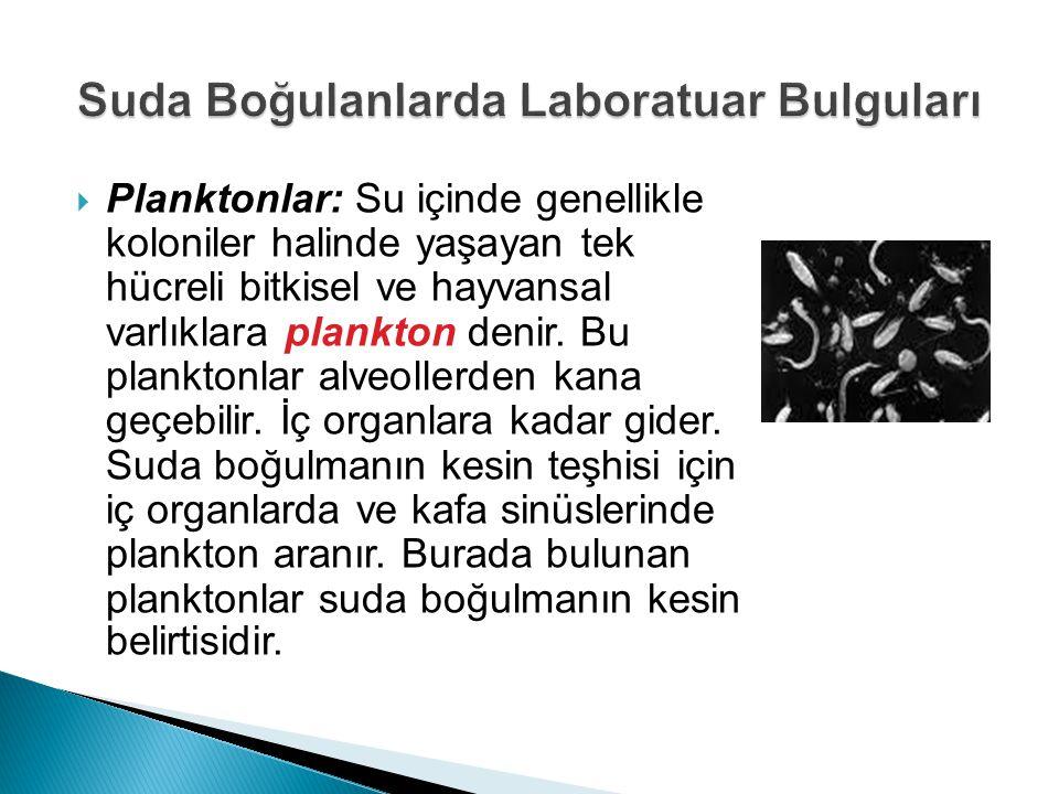 Suda Boğulanlarda Laboratuar Bulguları