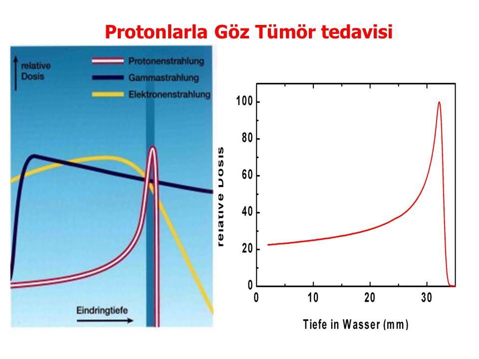 Protonlarla Göz Tümör tedavisi