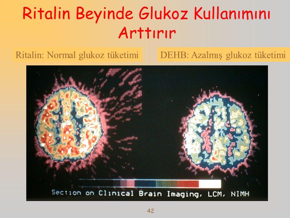 Ritalin Beyinde Glukoz Kullanımını Arttırır