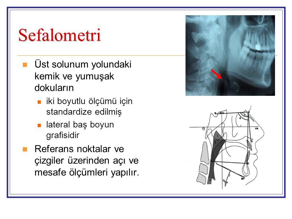 Sefalometri Üst solunum yolundaki kemik ve yumuşak dokuların