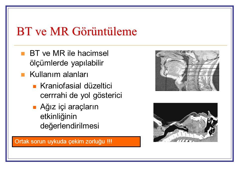 BT ve MR Görüntüleme BT ve MR ile hacimsel ölçümlerde yapılabilir