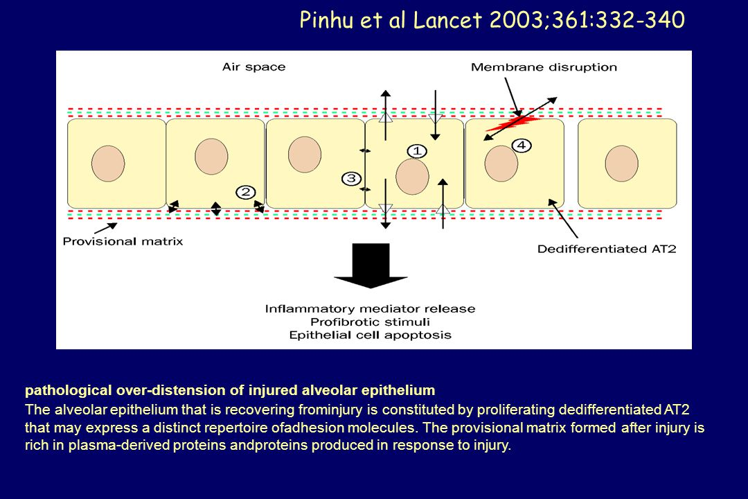 Pinhu et al Lancet 2003;361:332-340 pathological over-distension of injured alveolar epithelium.