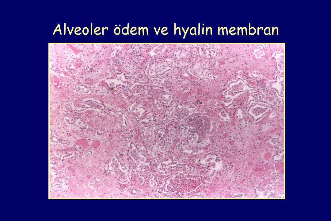 Alveoler ödem ve hyalin membran