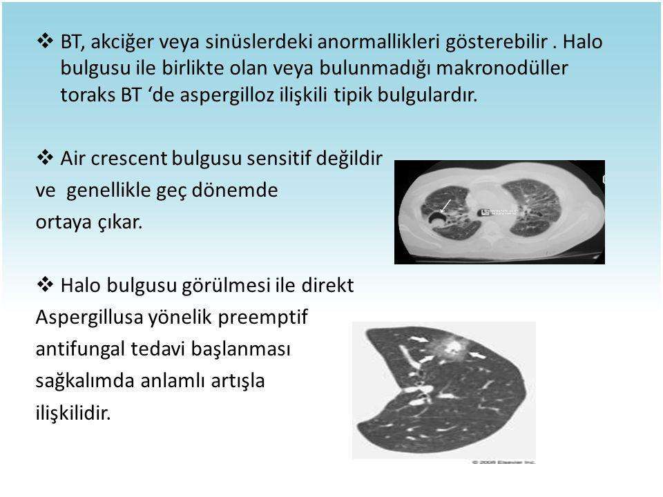 BT, akciğer veya sinüslerdeki anormallikleri gösterebilir
