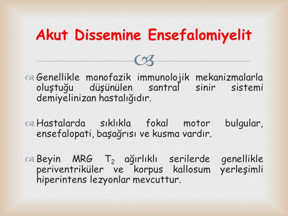 Akut Dissemine Ensefalomiyelit