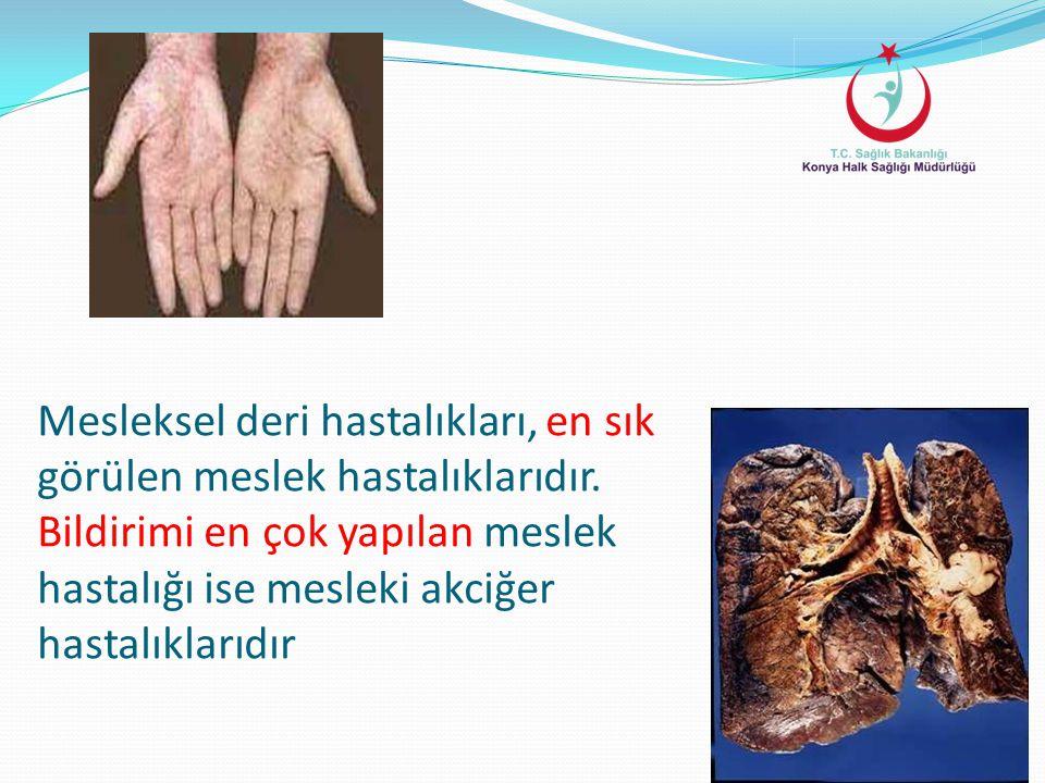 Mesleksel deri hastalıkları, en sık görülen meslek hastalıklarıdır