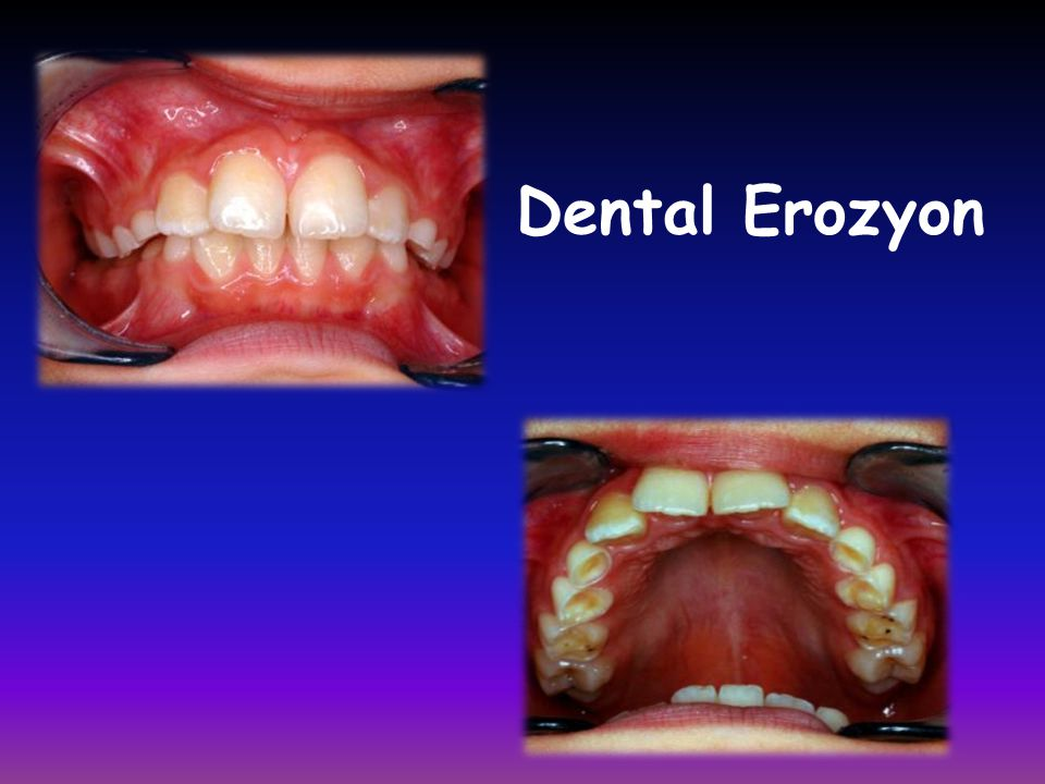 Dental Erozyon
