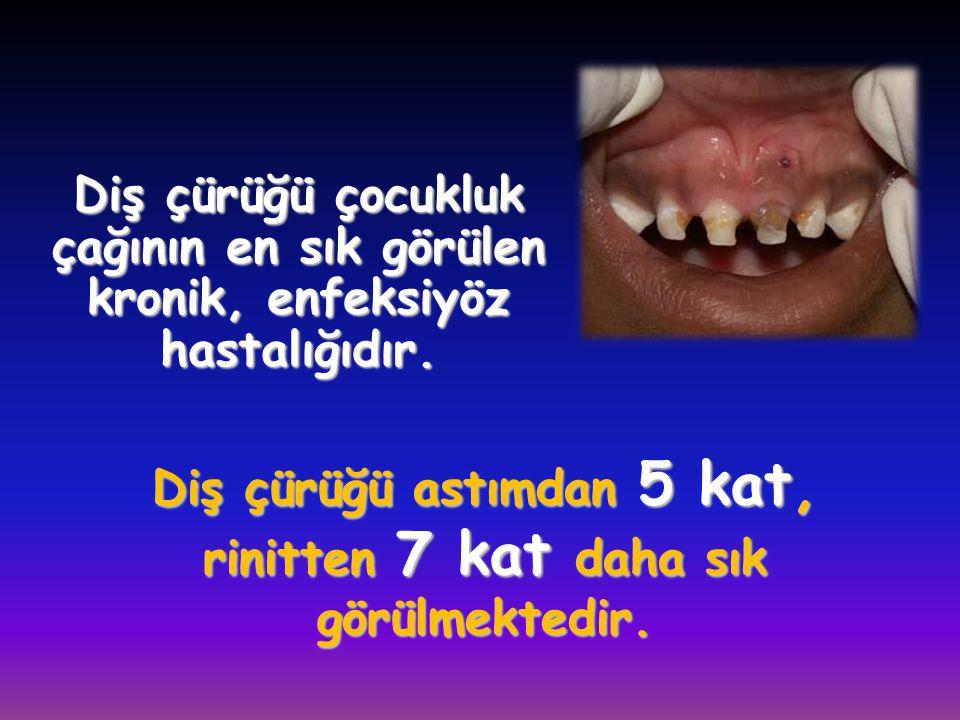 Diş çürüğü astımdan 5 kat, rinitten 7 kat daha sık görülmektedir.