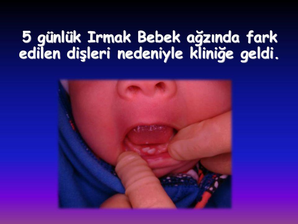 5 günlük Irmak Bebek ağzında fark edilen dişleri nedeniyle kliniğe geldi.