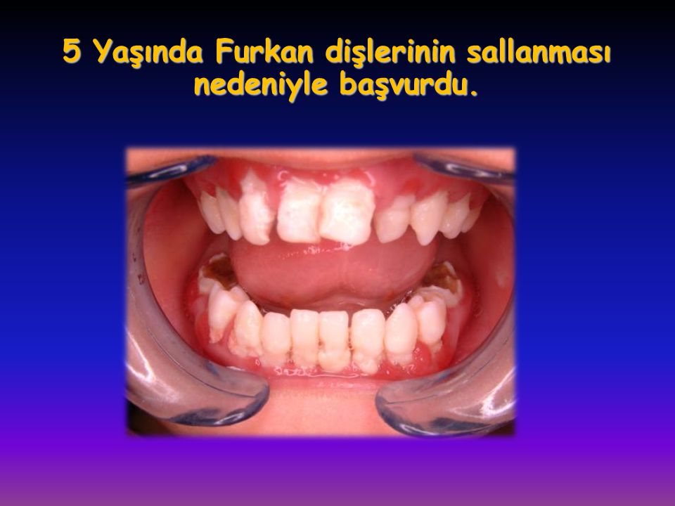 5 Yaşında Furkan dişlerinin sallanması nedeniyle başvurdu.
