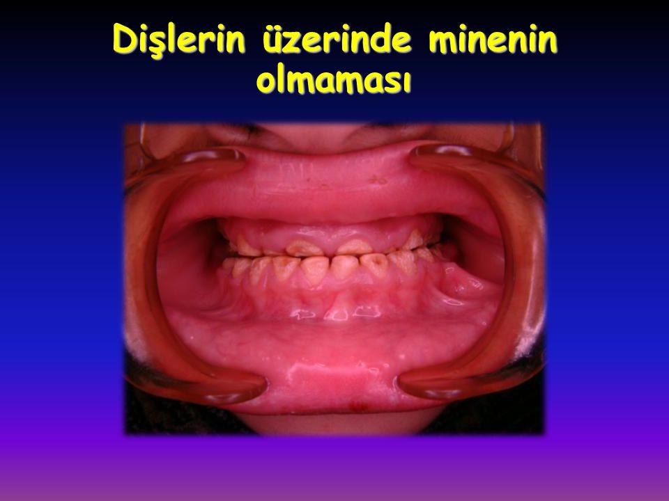Dişlerin üzerinde minenin olmaması