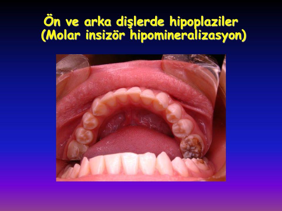 Ön ve arka dişlerde hipoplaziler (Molar insizör hipomineralizasyon)