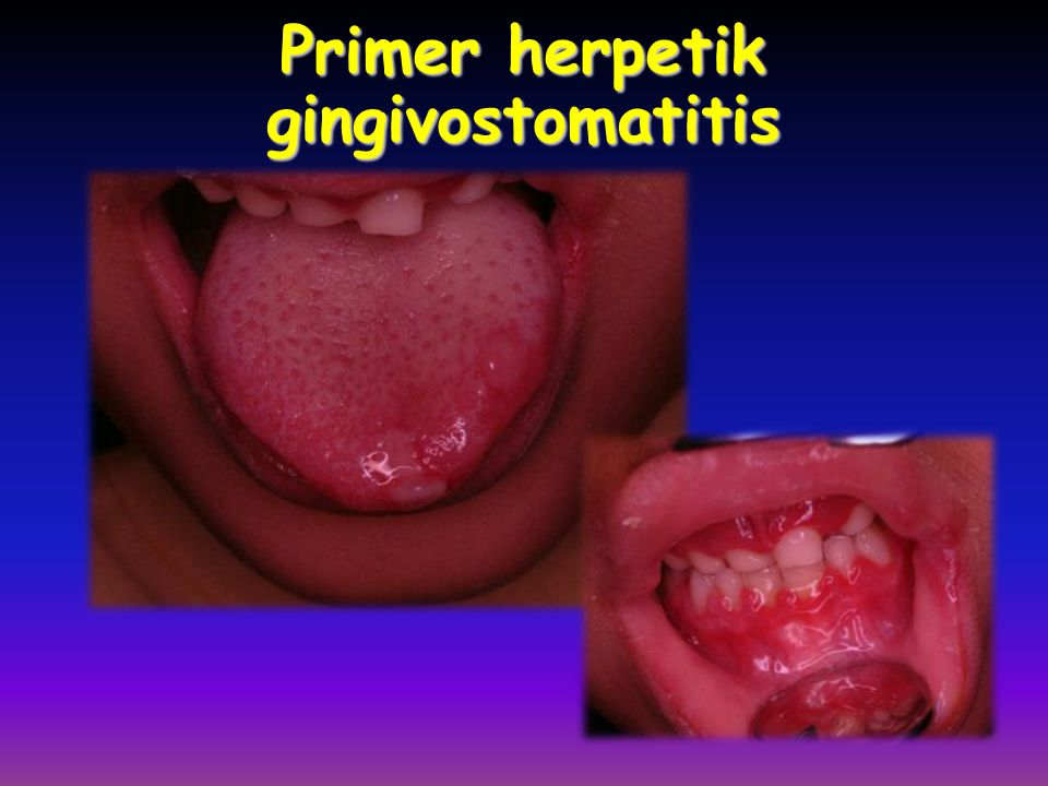 Primer herpetik gingivostomatitis