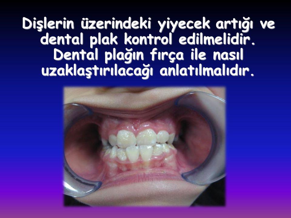 Dişlerin üzerindeki yiyecek artığı ve dental plak kontrol edilmelidir