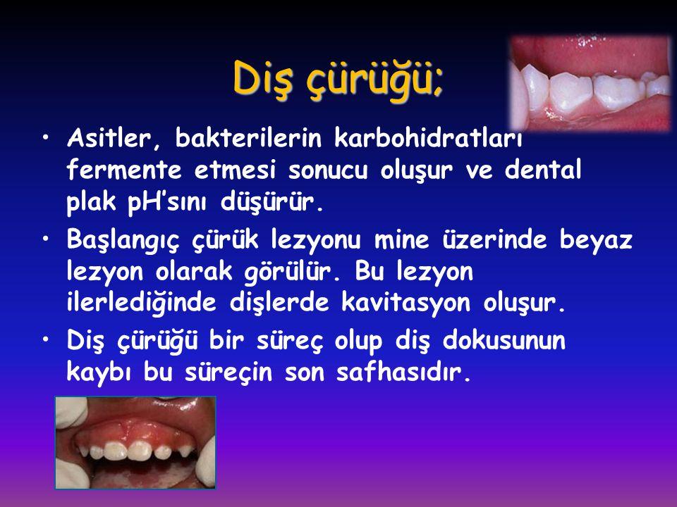 Diş çürüğü; Asitler, bakterilerin karbohidratları fermente etmesi sonucu oluşur ve dental plak pH'sını düşürür.