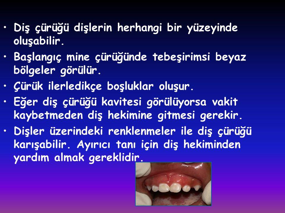 Diş çürüğü dişlerin herhangi bir yüzeyinde oluşabilir.