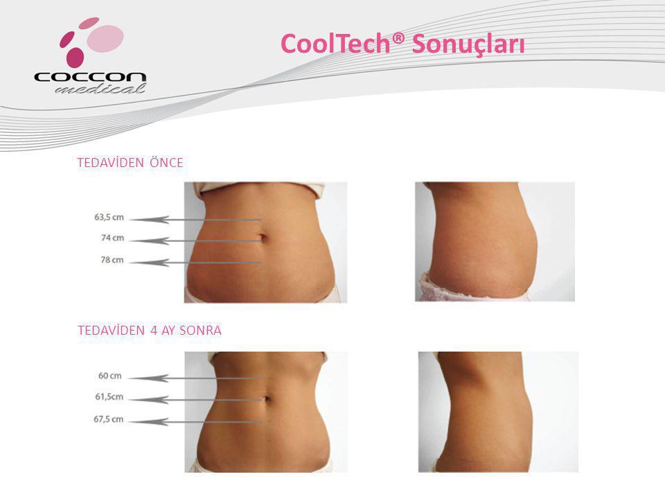 CoolTech® Sonuçları TEDAVİDEN ÖNCE TEDAVİDEN 4 AY SONRA
