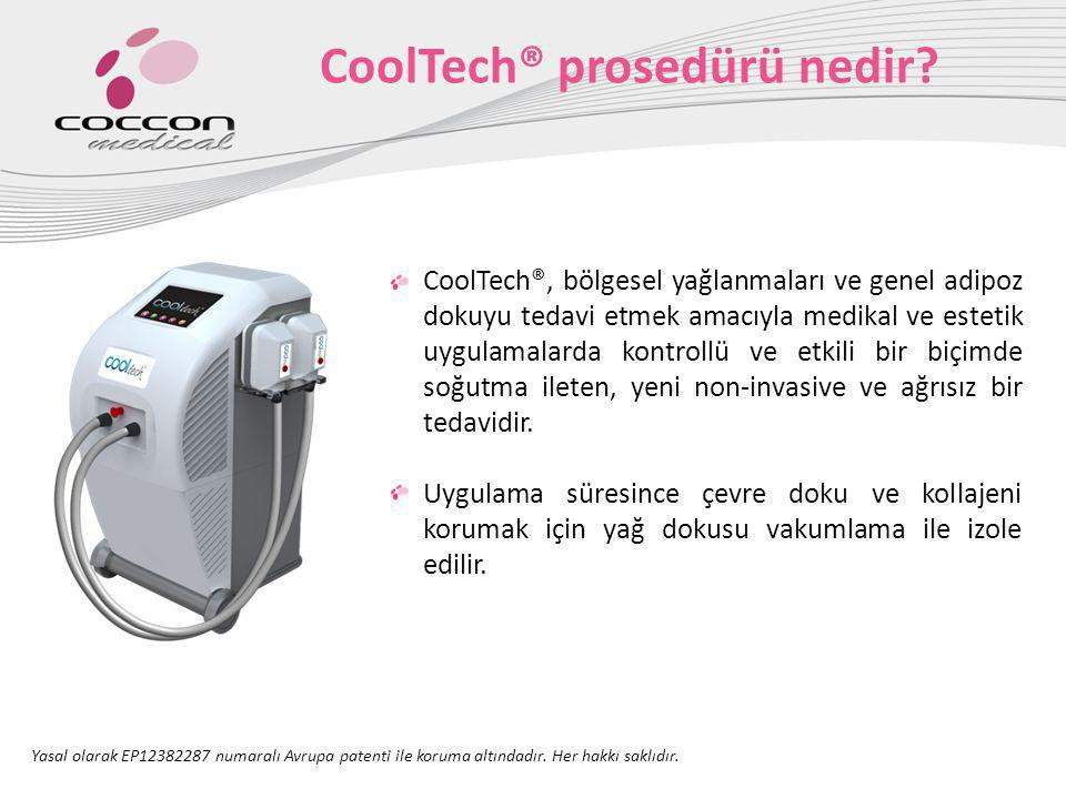 CoolTech® prosedürü nedir