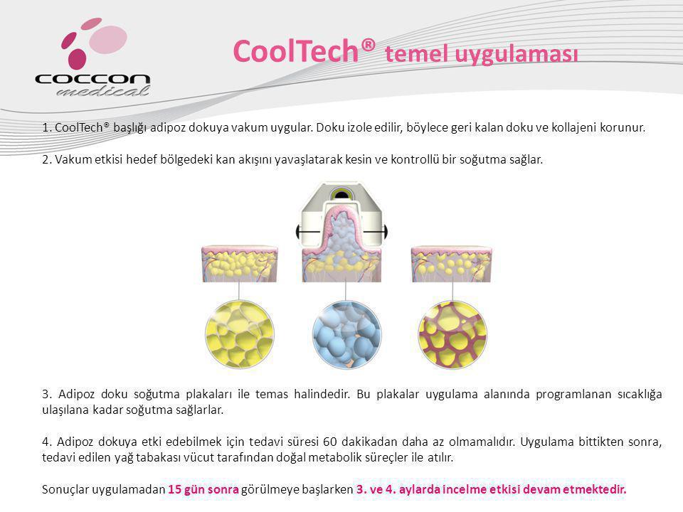 CoolTech® temel uygulaması