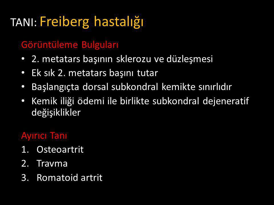 TANI: Freiberg hastalığı