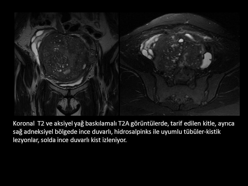 Koronal T2 ve aksiyel yağ baskılamalı T2A görüntülerde, tarif edilen kitle, ayrıca sağ adneksiyel bölgede ince duvarlı, hidrosalpinks ile uyumlu tübüler-kistik lezyonlar, solda ince duvarlı kist izleniyor.