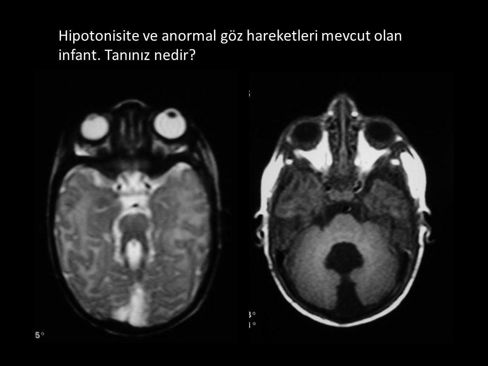 Hipotonisite ve anormal göz hareketleri mevcut olan infant