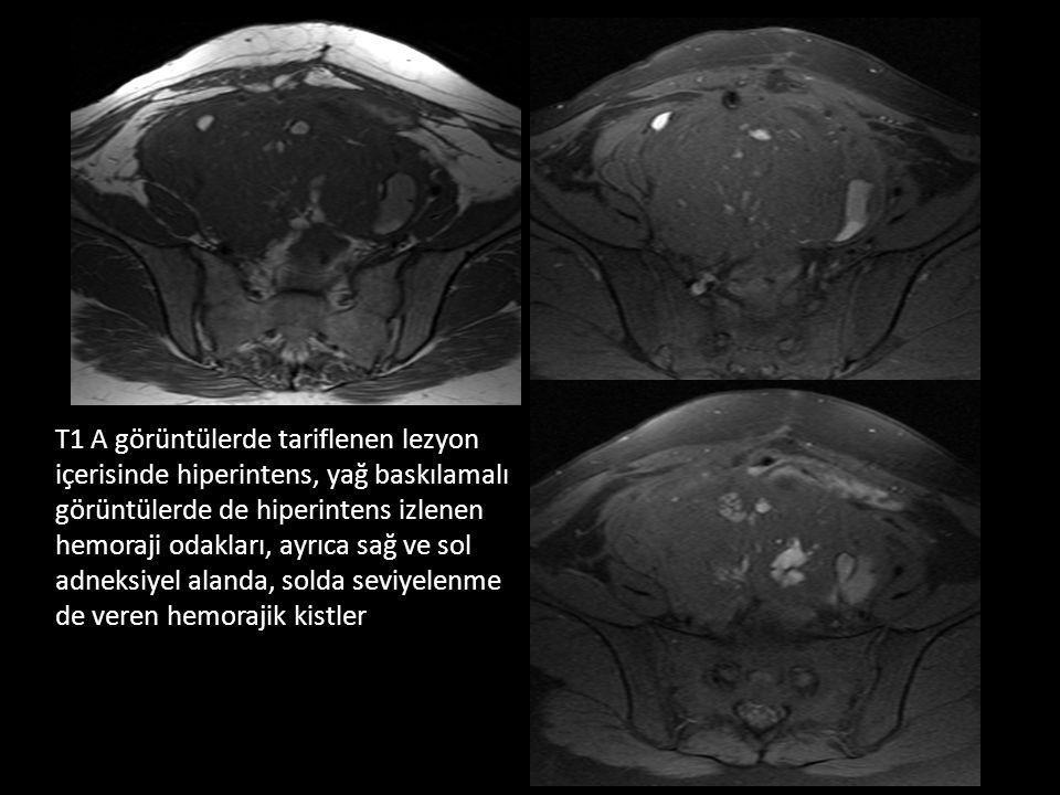 T1 A görüntülerde tariflenen lezyon içerisinde hiperintens, yağ baskılamalı görüntülerde de hiperintens izlenen hemoraji odakları, ayrıca sağ ve sol adneksiyel alanda, solda seviyelenme de veren hemorajik kistler