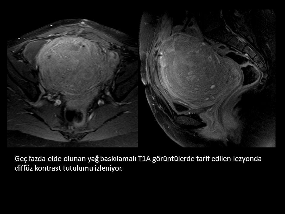 Geç fazda elde olunan yağ baskılamalı T1A görüntülerde tarif edilen lezyonda diffüz kontrast tutulumu izleniyor.