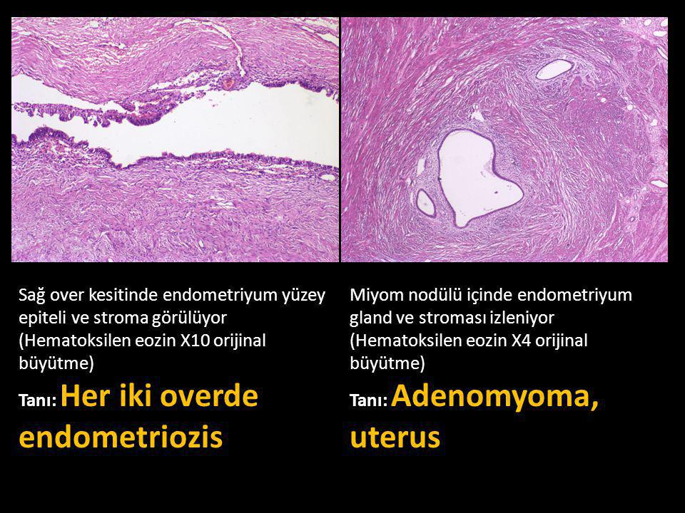 Sağ over kesitinde endometriyum yüzey epiteli ve stroma görülüyor (Hematoksilen eozin X10 orijinal büyütme)
