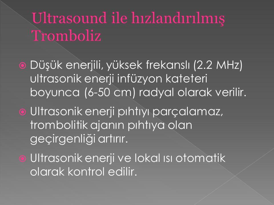 Ultrasound ile hızlandırılmış Tromboliz