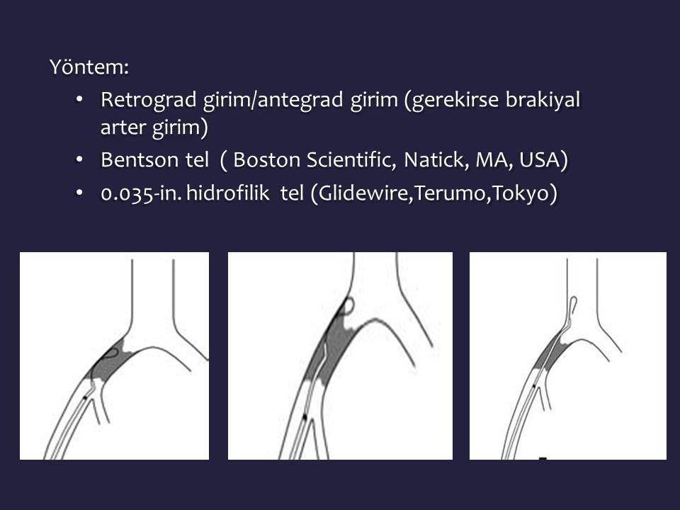 Yöntem: Retrograd girim/antegrad girim (gerekirse brakiyal arter girim) Bentson tel ( Boston Scientific, Natick, MA, USA)