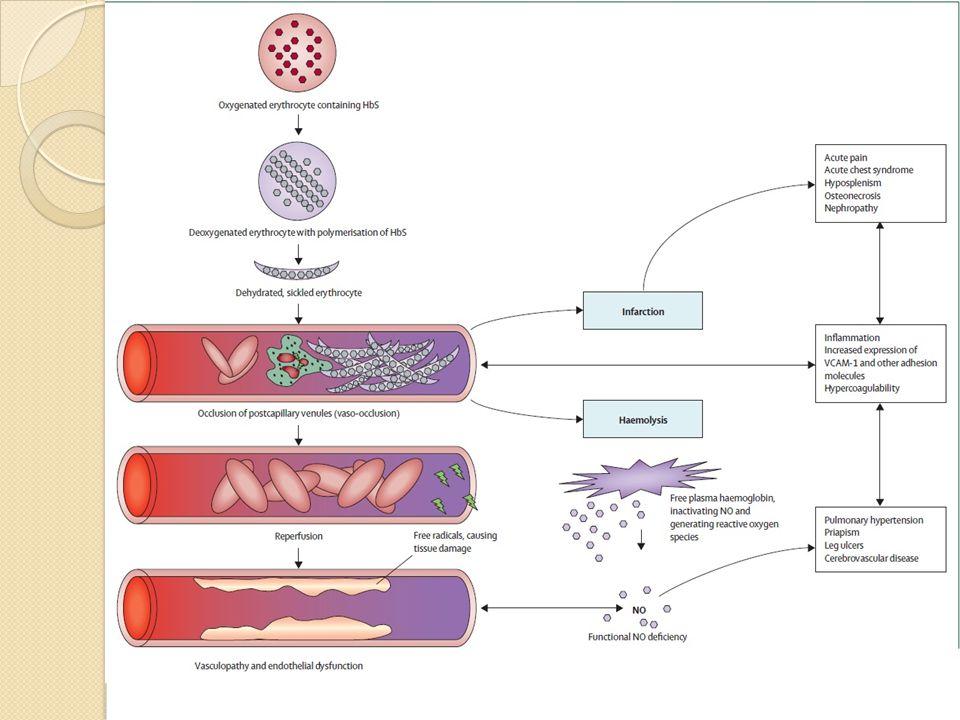 Orak hücre hastalığının patofizyolojisi: Hb S polimerizasyonun, hiperviskositenin, vazooklüzyonun, hemolizin ve endotel disfonksiyonun rollerini göstermektedir.