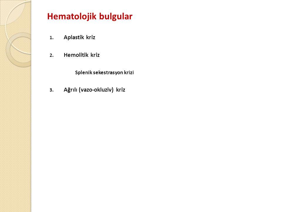 Hematolojik bulgular Aplastik kriz Hemolitik kriz