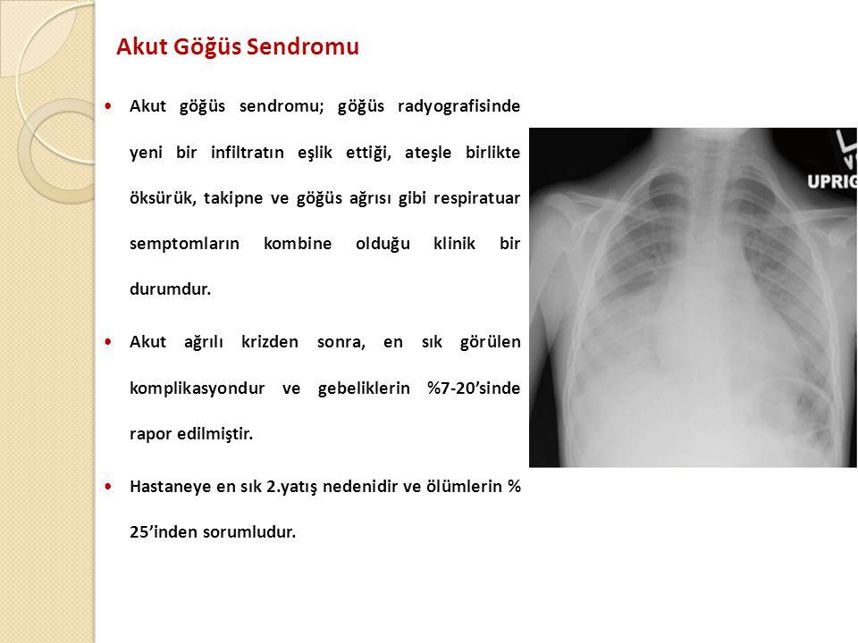 Akut Göğüs Sendromu