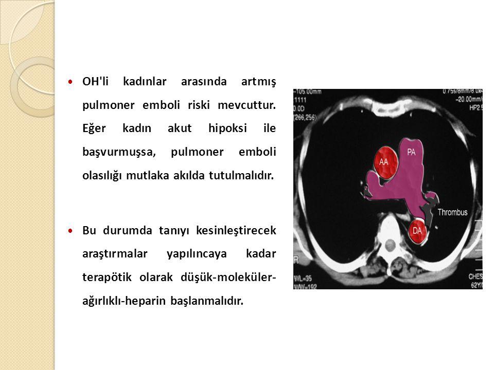 OH li kadınlar arasında artmış pulmoner emboli riski mevcuttur