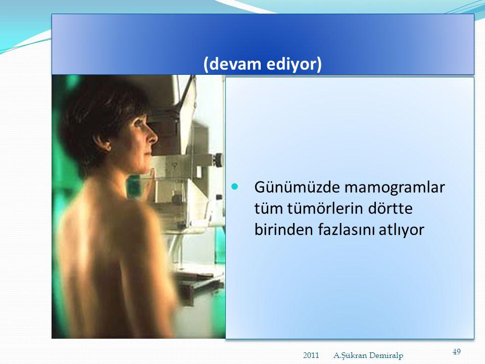 (devam ediyor) Günümüzde mamogramlar tüm tümörlerin dörtte birinden fazlasını atlıyor.