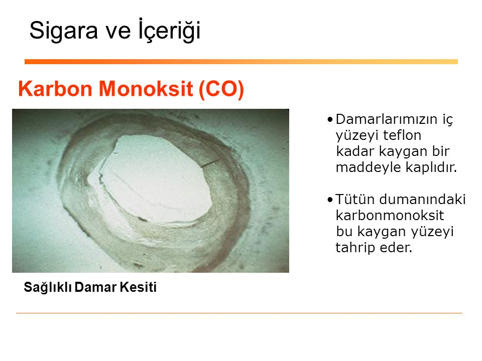 Sigara ve İçeriği Karbon Monoksit (CO) Damarlarımızın iç yüzeyi teflon