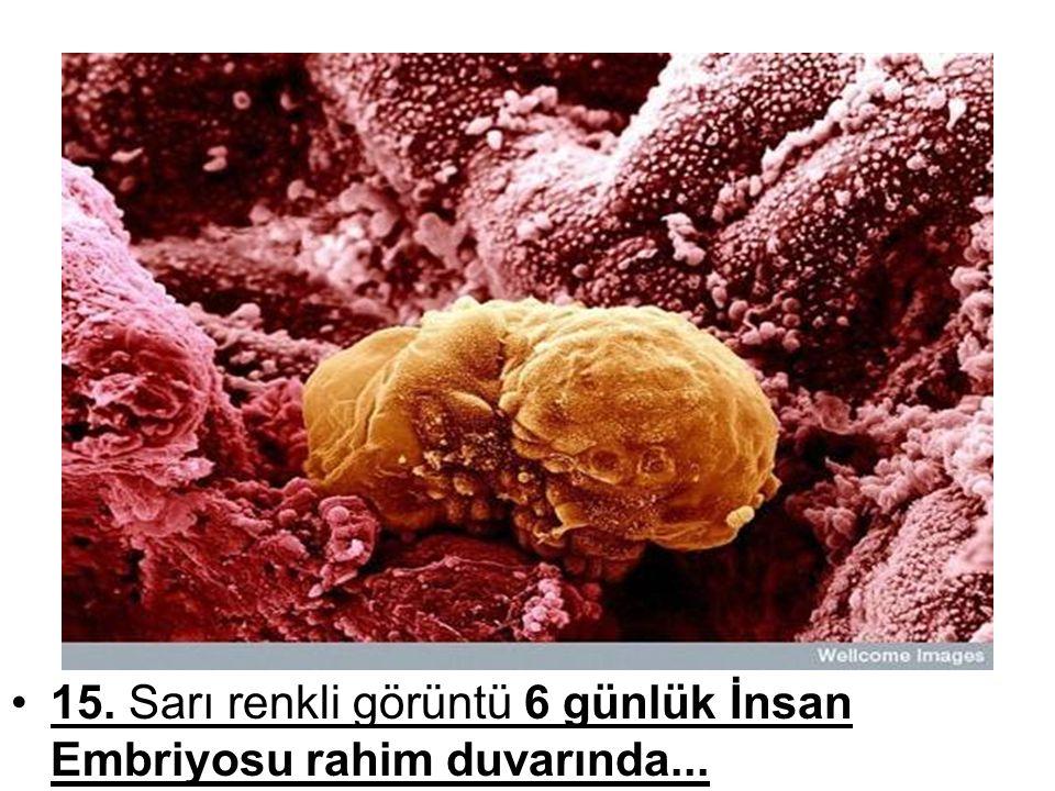 15. Sarı renkli görüntü 6 günlük İnsan Embriyosu rahim duvarında...