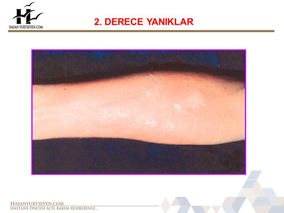 2. DERECE YANIKLAR