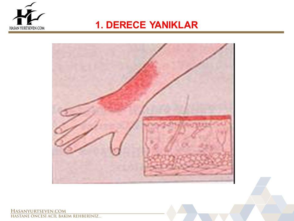1. DERECE YANIKLAR