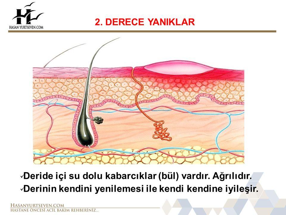 2. DERECE YANIKLAR Deride içi su dolu kabarcıklar (bül) vardır.