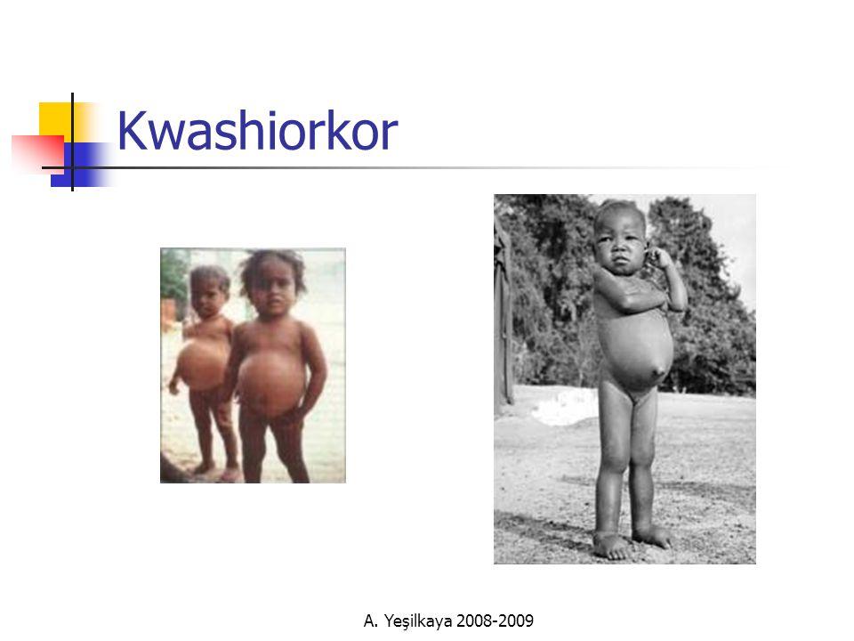 Kwashiorkor A. Yeşilkaya 2008-2009