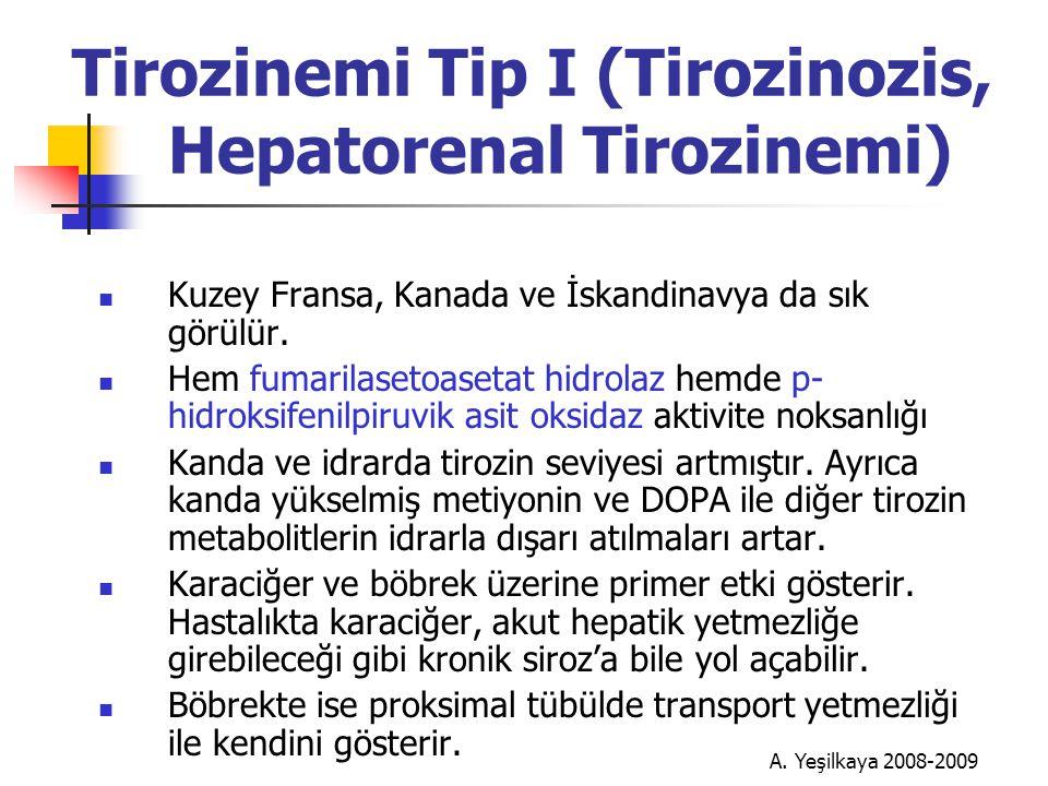 Tirozinemi Tip I (Tirozinozis, Hepatorenal Tirozinemi)