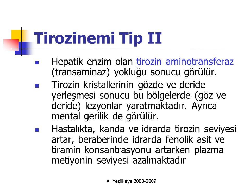 Tirozinemi Tip II Hepatik enzim olan tirozin aminotransferaz (transaminaz) yokluğu sonucu görülür.