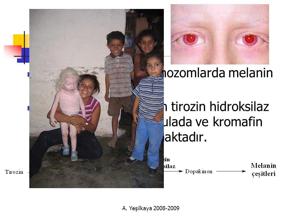 Albinizm Melanositlerdeki melanozomlarda melanin sentezi